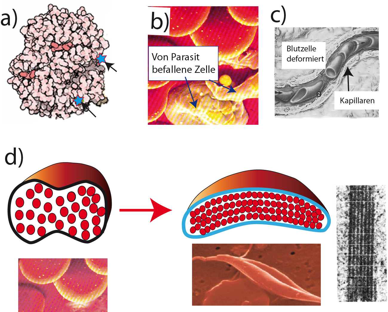 Dorable Genetik Der Sichelzellenanämie Arbeitsblatt Image ...